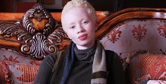Un mannequin albinos pour la première fois en couverture de Vogue