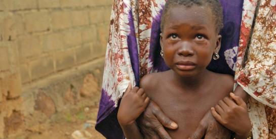 IMAM Cissé Djiguiba /président de la Fondation Djigui : ``les Mutilations génitales féminines constituent un frein à la promotion et à l'épanouissement de la femme``