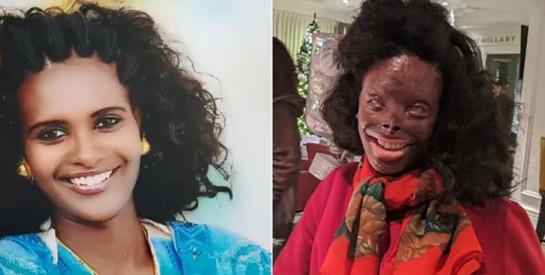 Atsede Nguse, une survivante d'une attaque à l'acide: ``Il y a plus de bonnes personnes que de mauvaises``