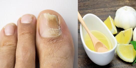 3 remèdes pour éliminer efficacement les champignons et renforcer les ongles