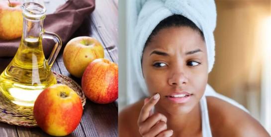 Soins du visage et du corps : Les bienfaits du vinaigre de cidre