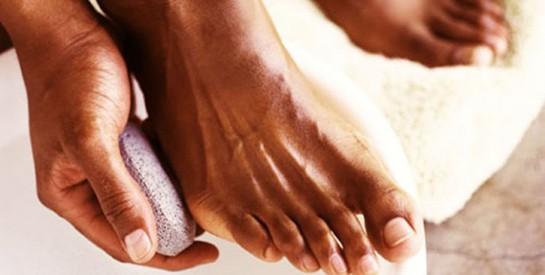 4 remèdes naturels pour traiter une mycose des ongles