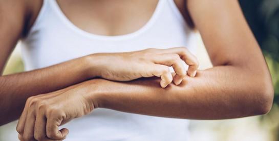 3 solutions naturelles pour calmer les démangeaisons