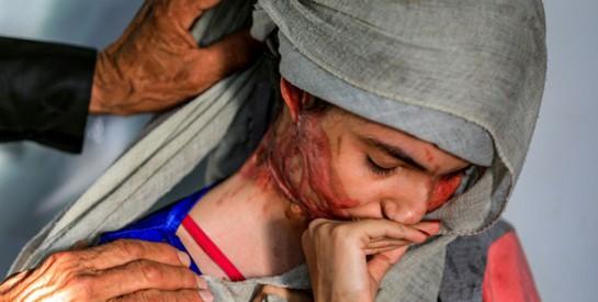 Défigurée à l'acide, Al-Anoud, 19 ans, visage des femmes brutalisées au Yémen