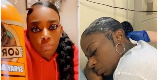 ``Gorilla Glue girl``: comment une américaine a pu sauver sa chevelure après avoir utilisé de la colle pour se coiffer