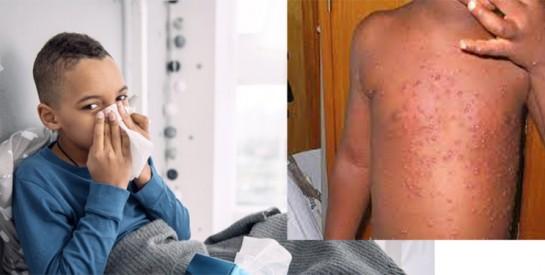 5 petites astuces de grand-mère contre la varicelle