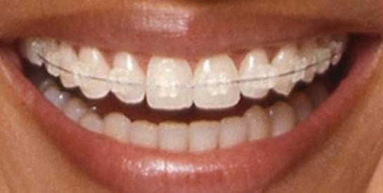 """"""" A cause de son appareil dentaire, ses amis se moquent d'elle """""""