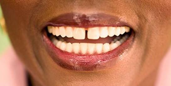 Comment faire pour retrouver mes dents blanches?
