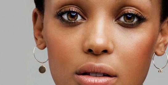 Comment traiter les lèvres gercées et irritées